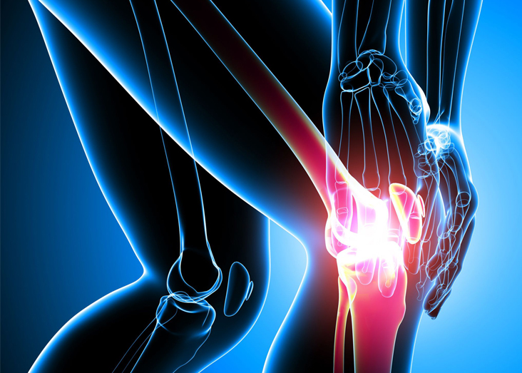 knee pain medical bills