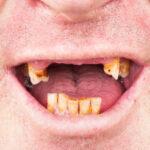 Gum disease is very harmful